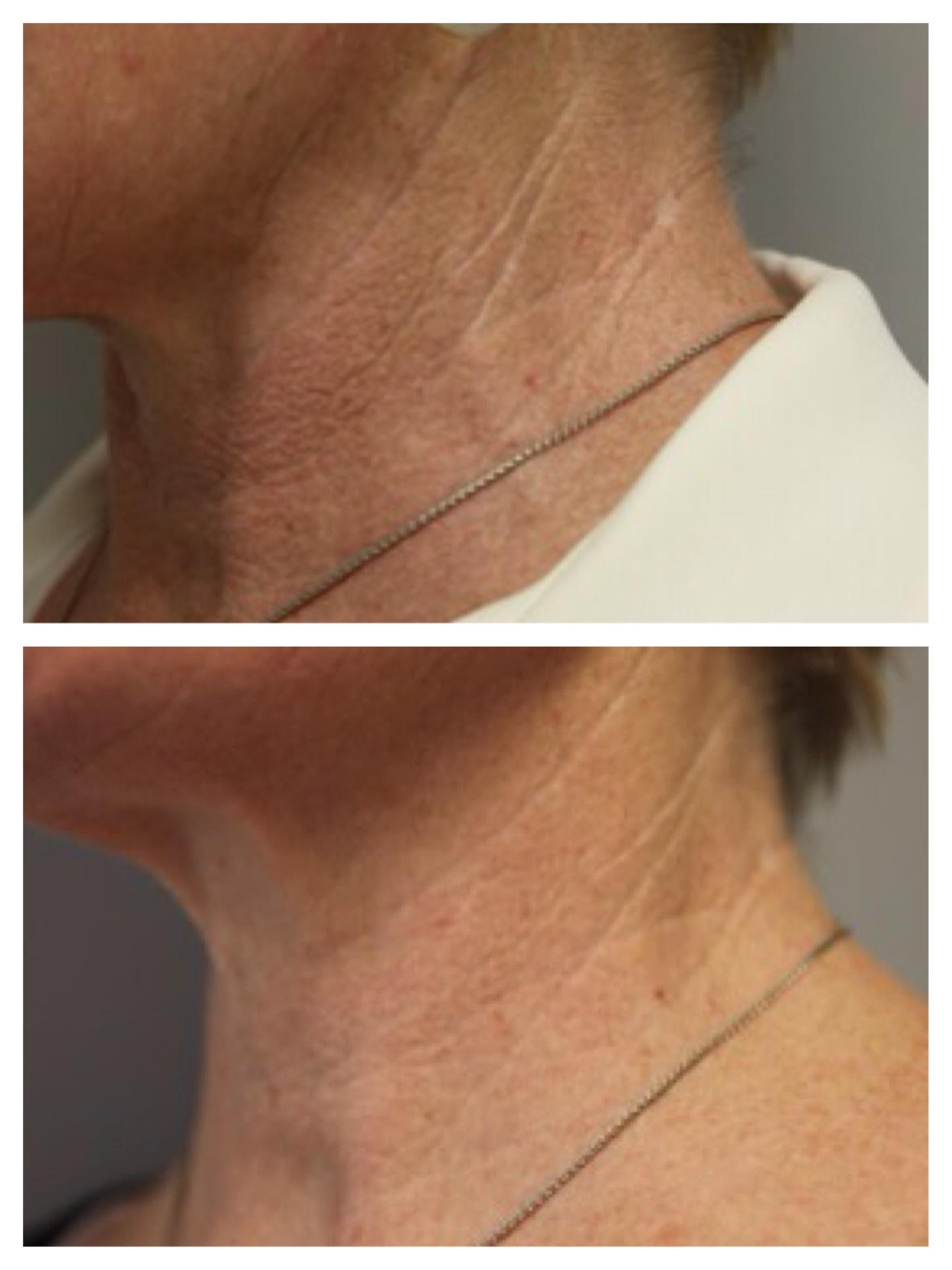 Woman neck 2
