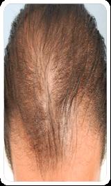 hairloss1