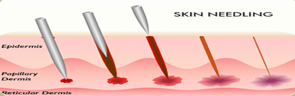 Image result for skin needling
