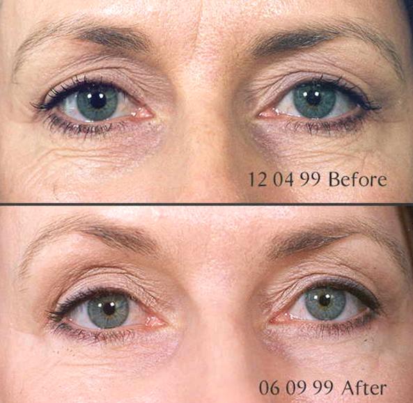 Skin Needling Mandurah Anti Ageing Clinic