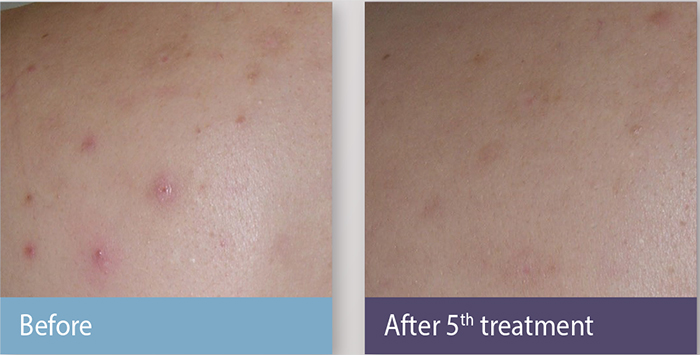 before-after-acne-treatment3