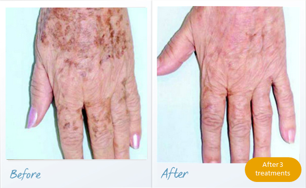 before-after-pigmented-lesions5