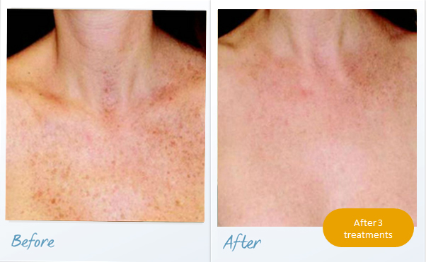 before-after-pigmented-lesions6