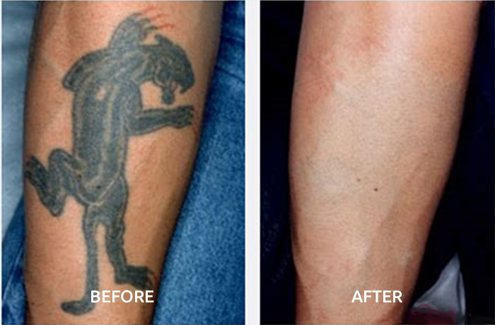 before-after-tattoo-removal2