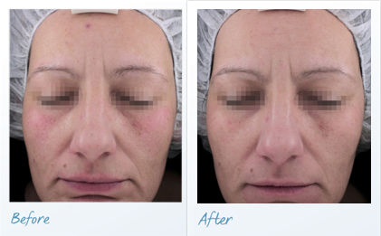 before-after-vascular-lesions-dye-scan2
