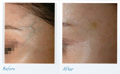 before-after-vascular-lesions-face