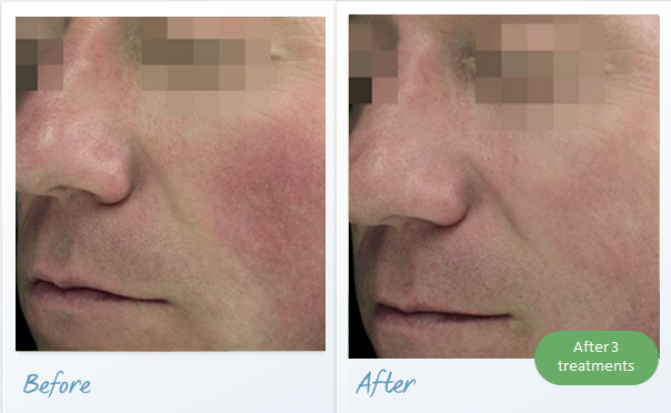 before-after-vascular-lesions-face2