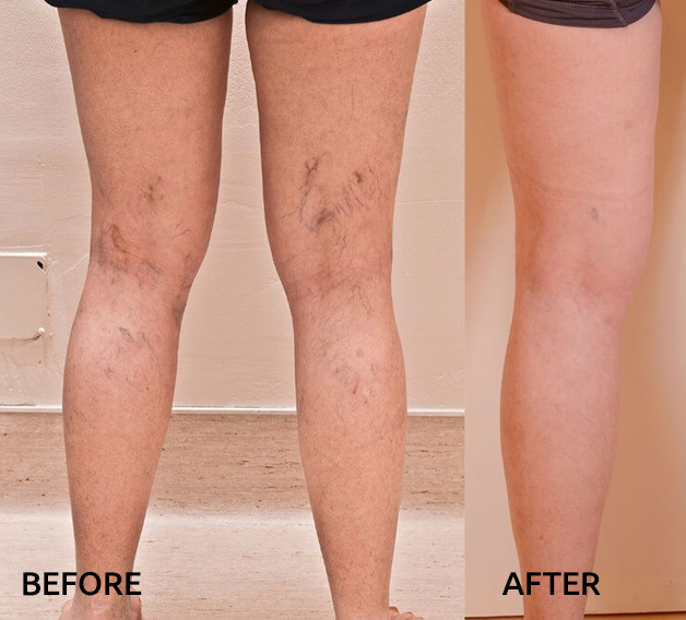before-after-vascular-lesions-legs