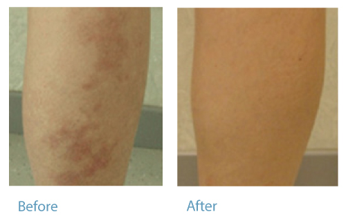 before-after-vascular-lesions-legs2