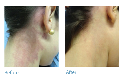 Vascular Lesions Veins Birthmarks Laser Therapy