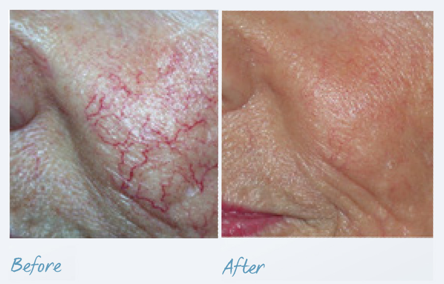 before-after-vascular-lesions