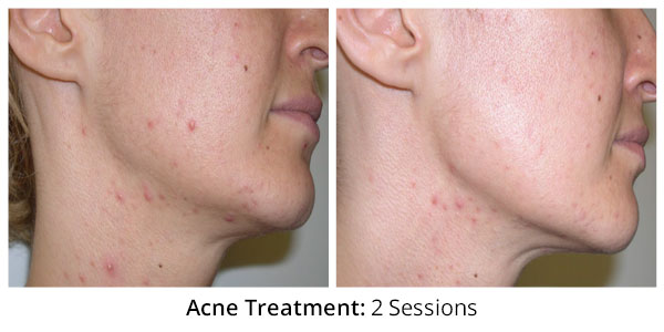 before-after-acne-treatment-1