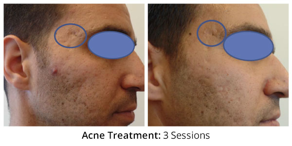 before-after-acne-treatment-4