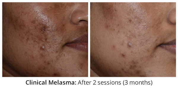 before-after-clinical-melasma-2-1