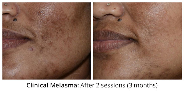 before-after-clinical-melasma-2-2