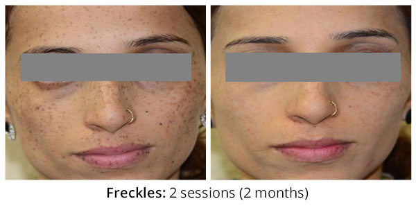 before-after-freckles-1