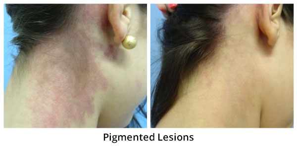 before-after-pigmented-lesions-3