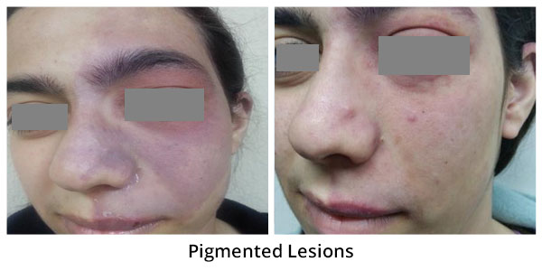 before-after-pigmented-lesions-4