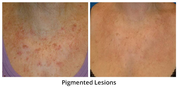 before-after-pigmented-lesions-5