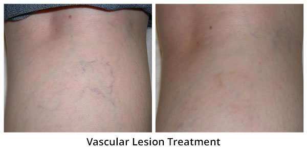 before-after-vascular4