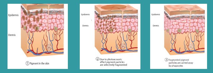 tattoo pigment removal diagram