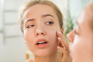 dry skin treatments