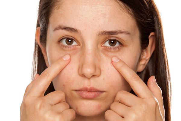 eye bags treatments
