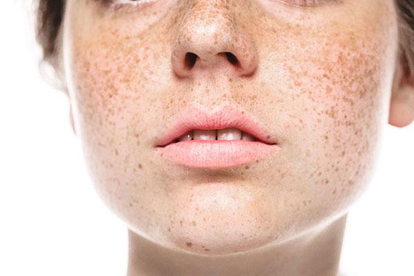 freckles, pigment melasma treatments