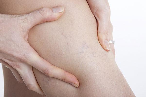 Broken/Dilated Capillaries treatments